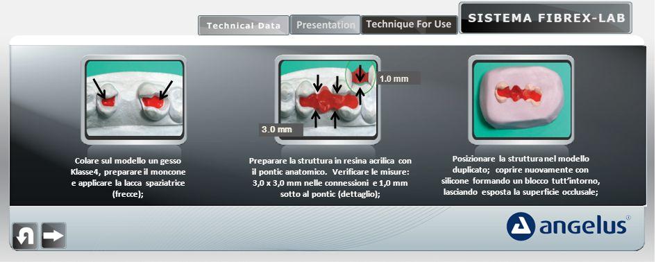 1.0 mm 3.0 mm. Colare sul modello un gesso Klasse4, preparare il moncone e applicare la lacca spaziatrice (frecce);