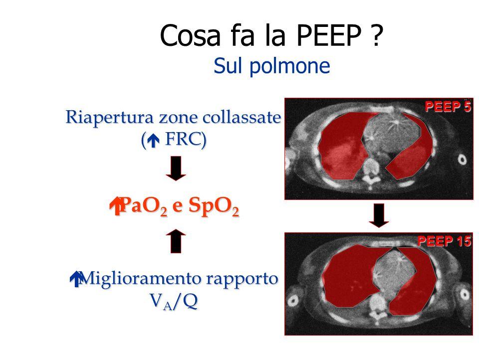 Cosa fa la PEEP Sul polmone