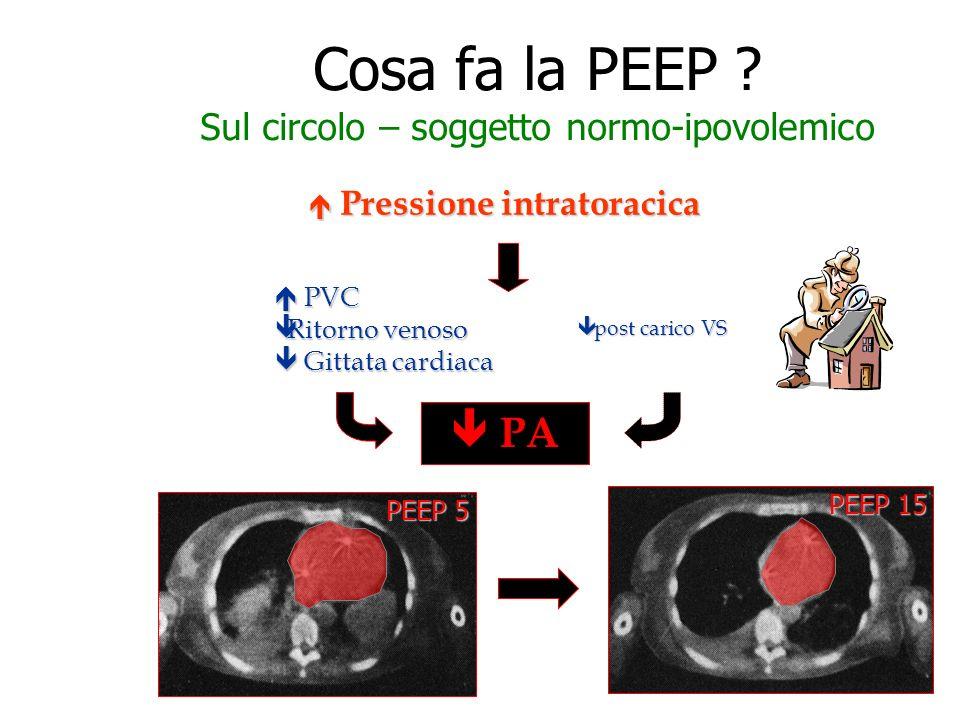 Cosa fa la PEEP Sul circolo – soggetto normo-ipovolemico