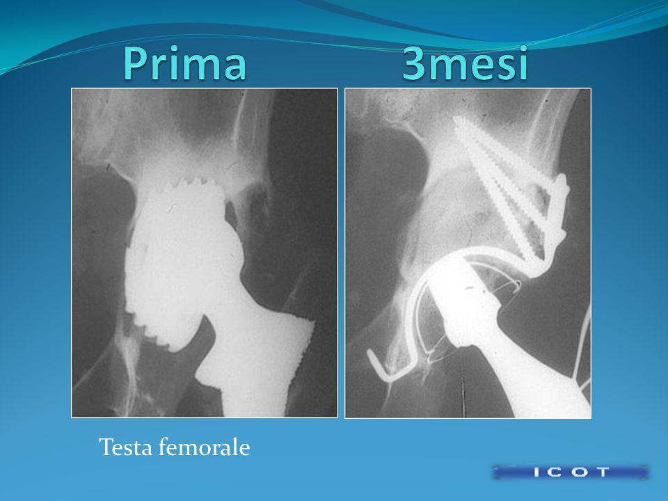 Prima 3mesi Testa femorale