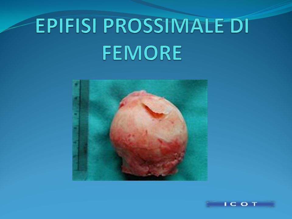 EPIFISI PROSSIMALE DI FEMORE