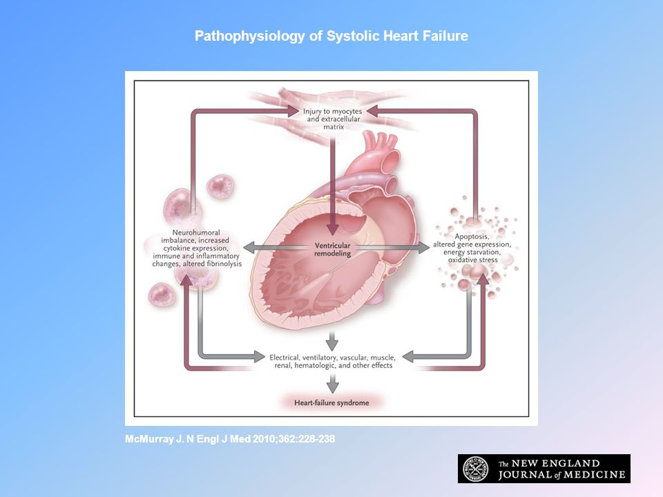 Pathophysiology of Systolic Heart Failure