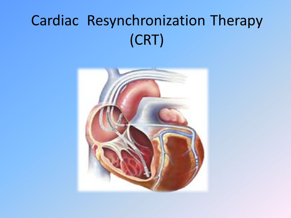 Cardiac Resynchronization Therapy (CRT)