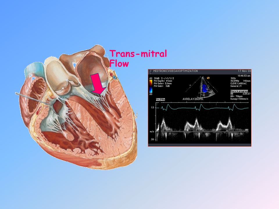 Trans-mitral Flow