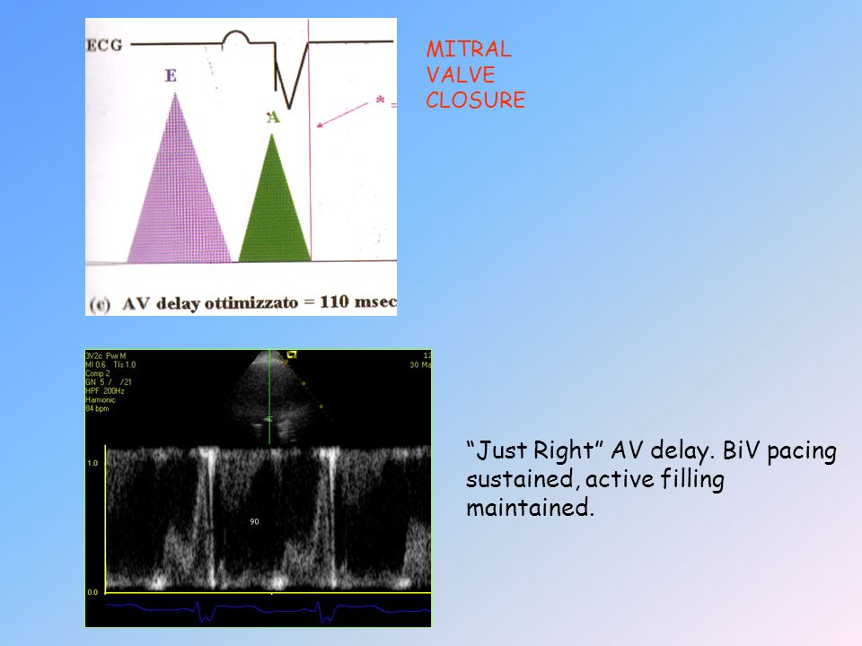 MITRAL VALVE CLOSURE Just Right AV delay. BiV pacing sustained, active filling maintained.