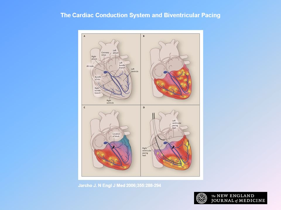 The Cardiac Conduction System and Biventricular Pacing