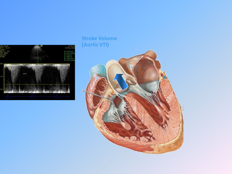 Stroke Volume (Aortic VTI)