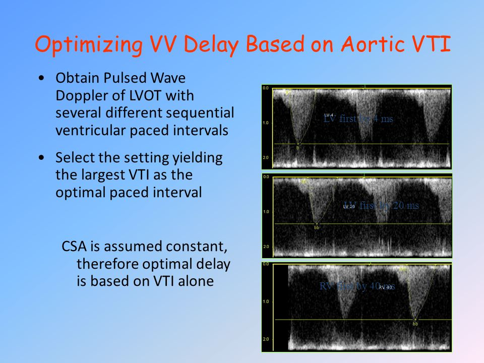 Optimizing VV Delay Based on Aortic VTI