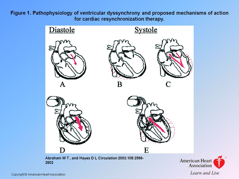 Figure 1. Pathophysiology of ventricular dyssynchrony and proposed mechanisms of action for cardiac resynchronization therapy.