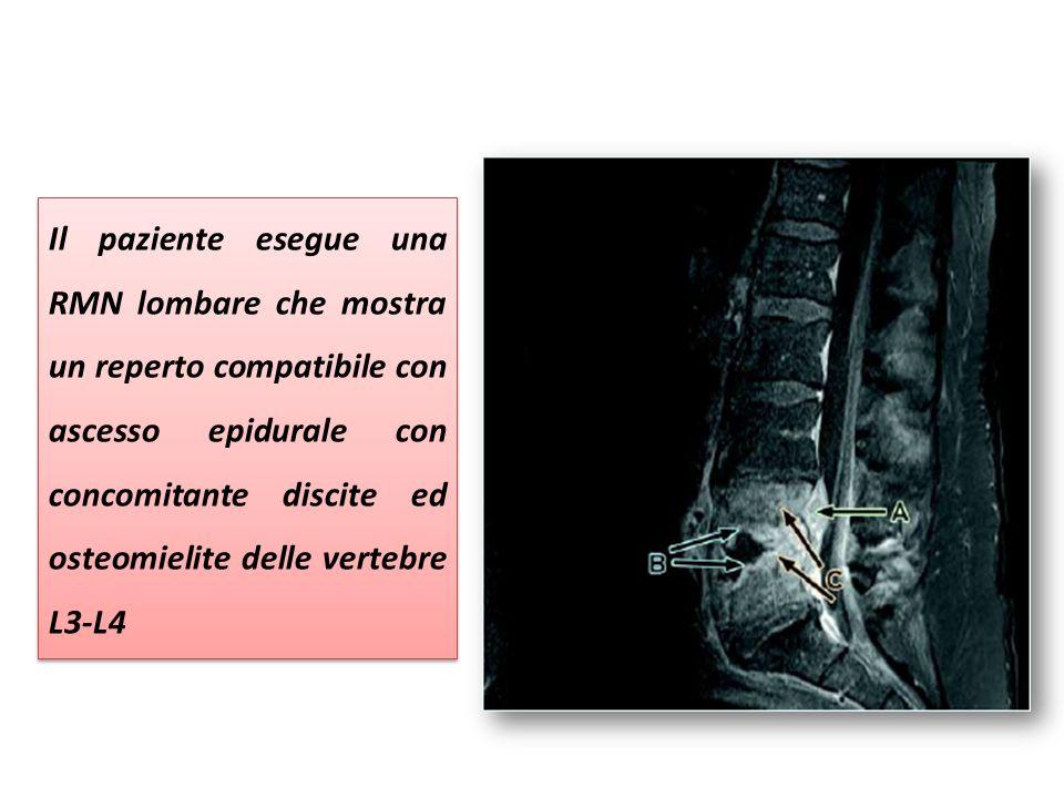 Il paziente esegue una RMN lombare che mostra un reperto compatibile con ascesso epidurale con concomitante discite ed osteomielite delle vertebre L3-L4