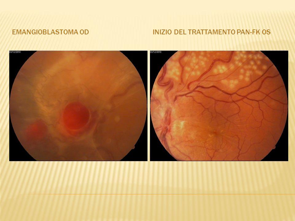 Emangioblastoma od Inizio del trattamento pan-fk os