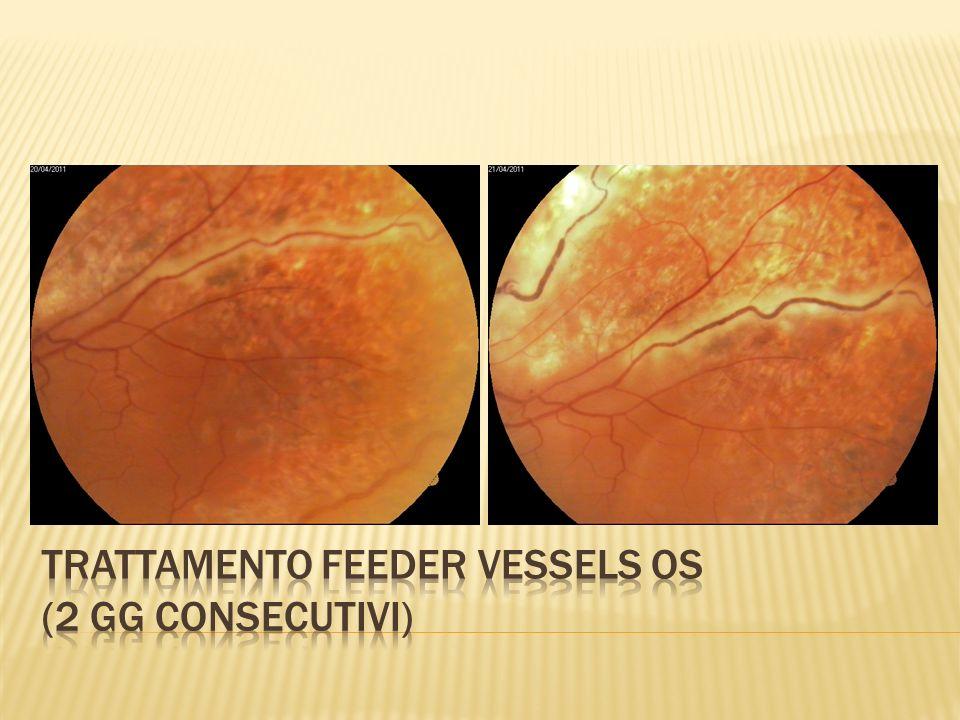 Trattamento feeder vessels OS (2 GG CONSECUTIVI)