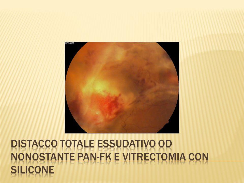 DISTACCO TOTALE ESSUDATIVO OD NONOSTANTE PAN-FK E VITRECTOMIA CON SILICONE