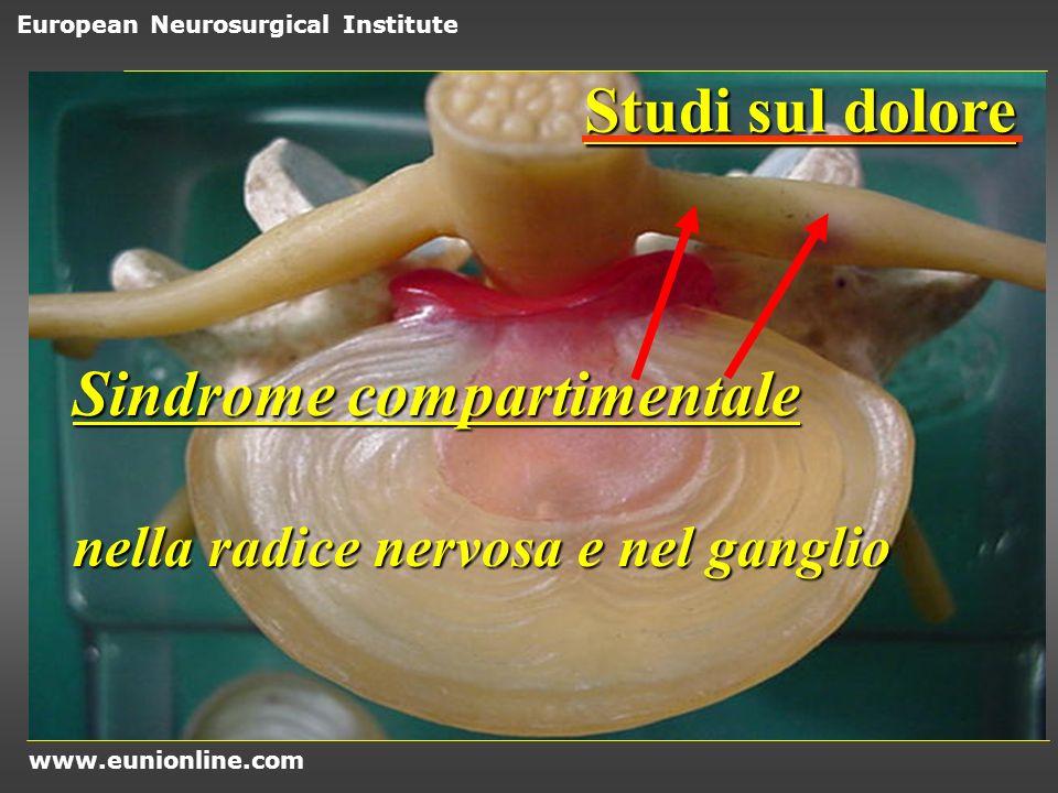 Sindrome compartimentale