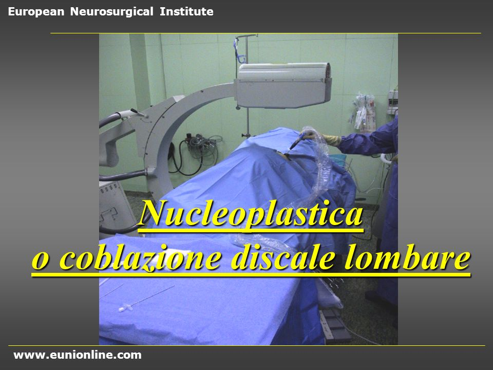 o coblazione discale lombare