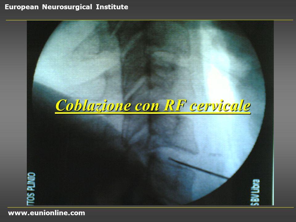 Coblazione con RF cervicale