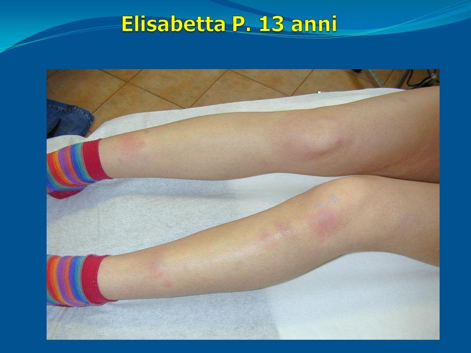 Elisabetta P. 13 anni