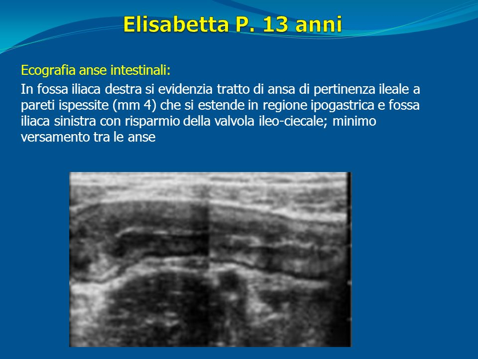 Elisabetta P. 13 anni Ecografia anse intestinali: