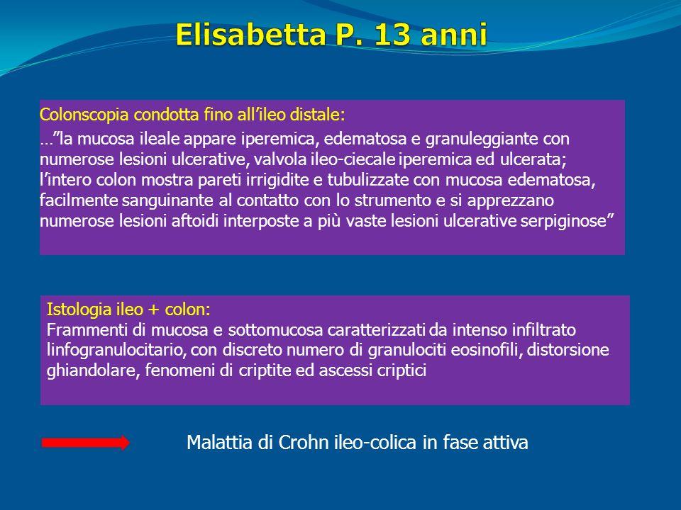 Elisabetta P. 13 anni Malattia di Crohn ileo-colica in fase attiva