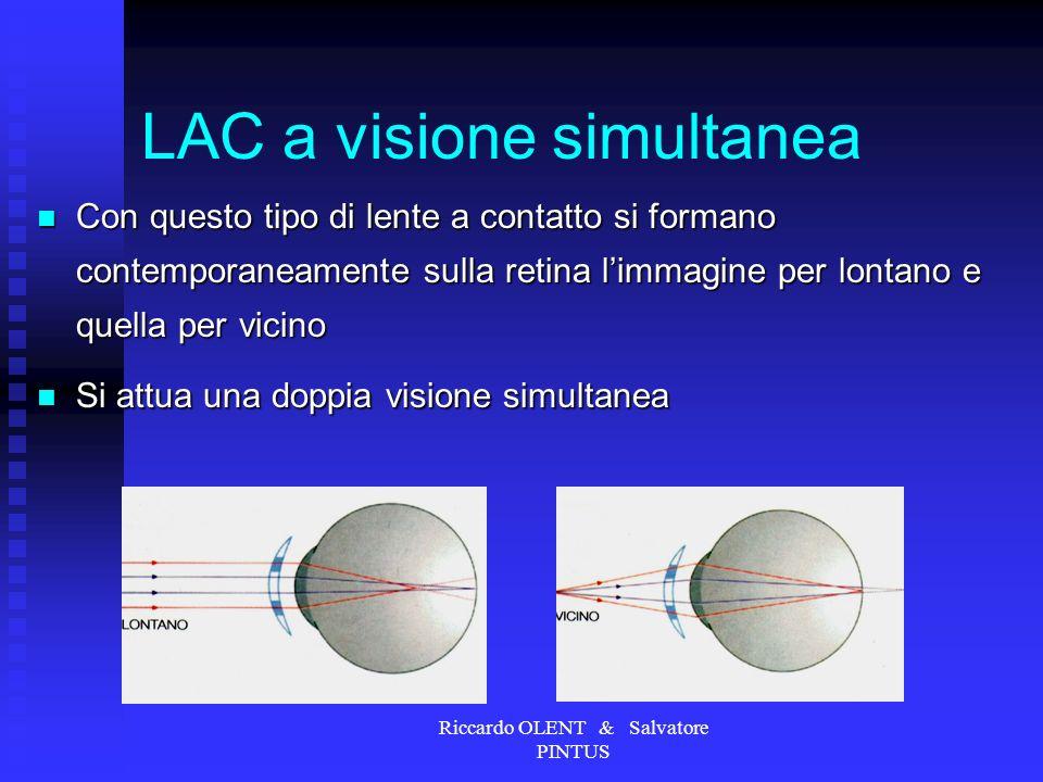 LAC a visione simultanea