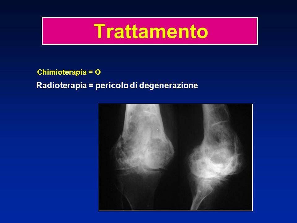 Trattamento Chimioterapia = O Radioterapia = pericolo di degenerazione