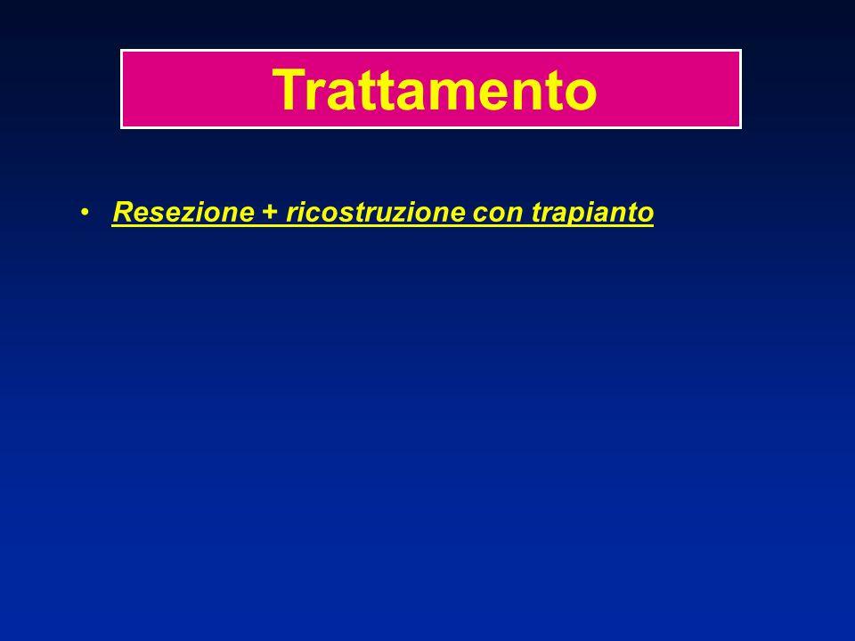 Trattamento Resezione + ricostruzione con trapianto