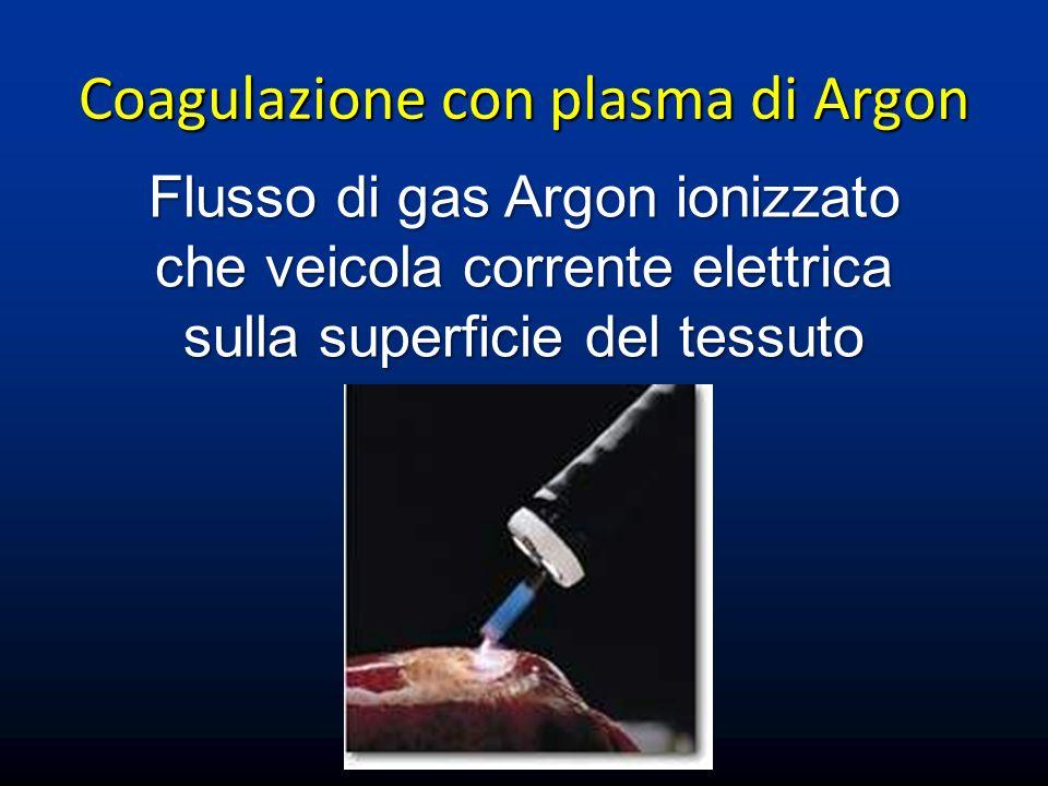 Coagulazione con plasma di Argon