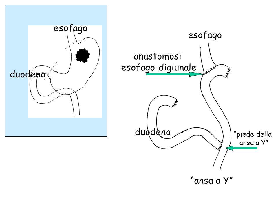 esofago esofago anastomosi esofago-digiunale duodeno duodeno