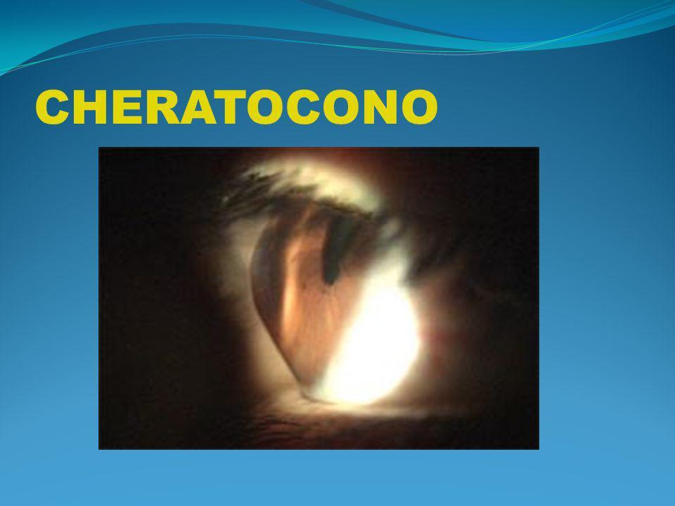 CHERATOCONO