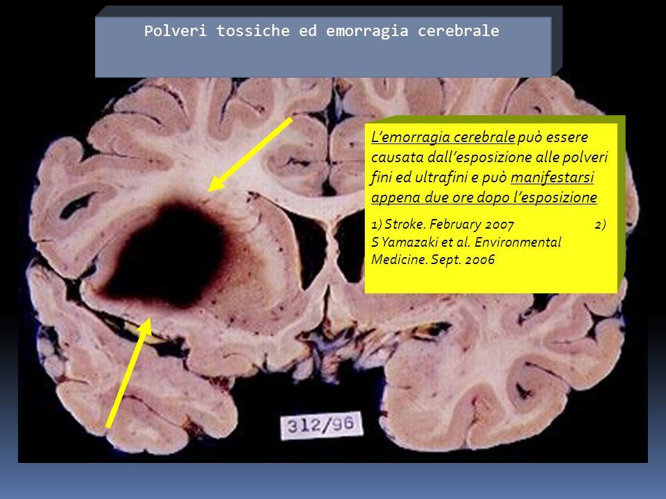 Polveri tossiche ed emorragia cerebrale
