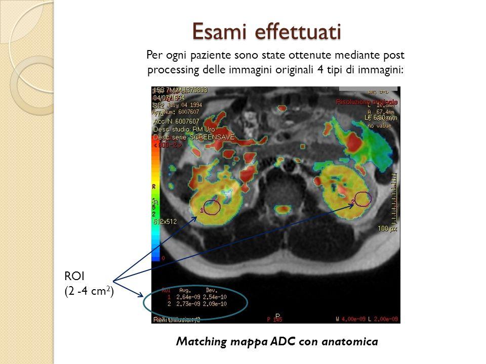 Matching mappa ADC con anatomica