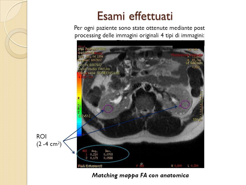 Matching mappa FA con anatomica