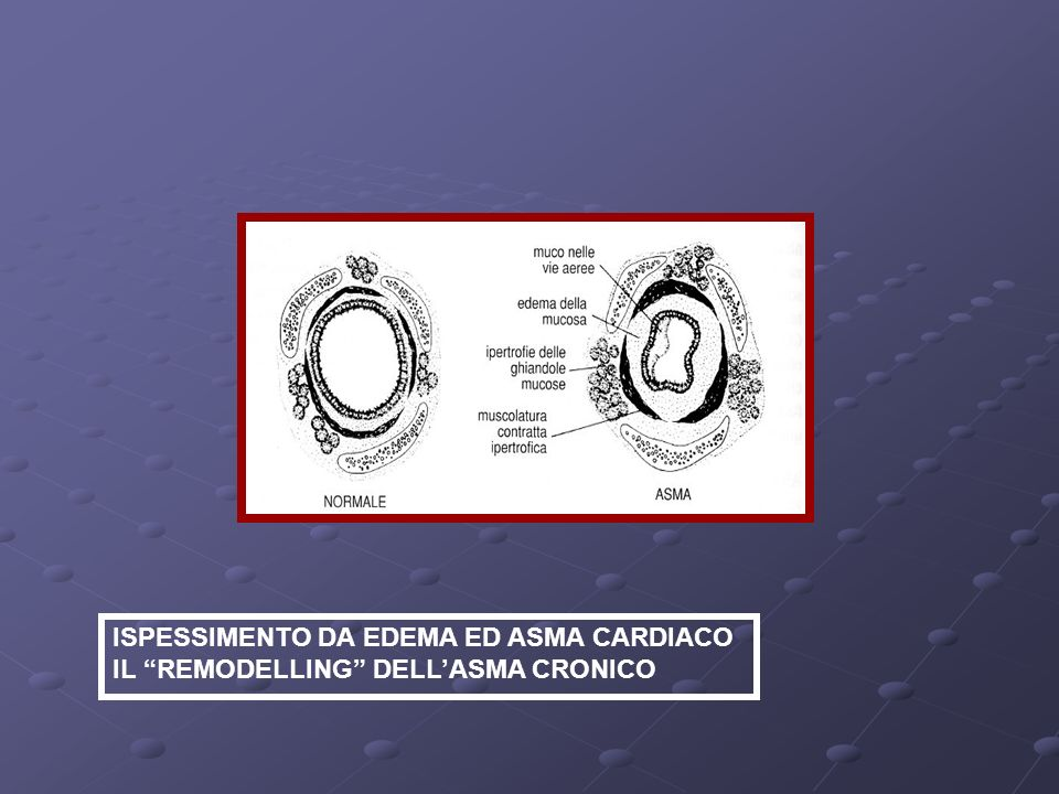 ISPESSIMENTO DA EDEMA ED ASMA CARDIACO