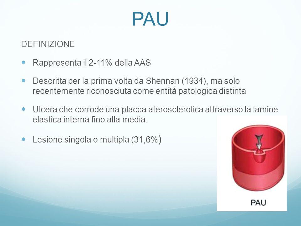 PAU DEFINIZIONE Rappresenta il 2-11% della AAS