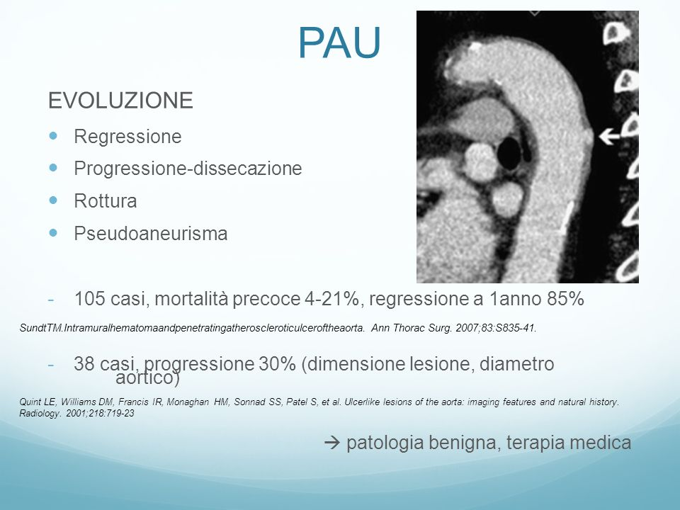 PAU EVOLUZIONE Regressione Progressione-dissecazione Rottura