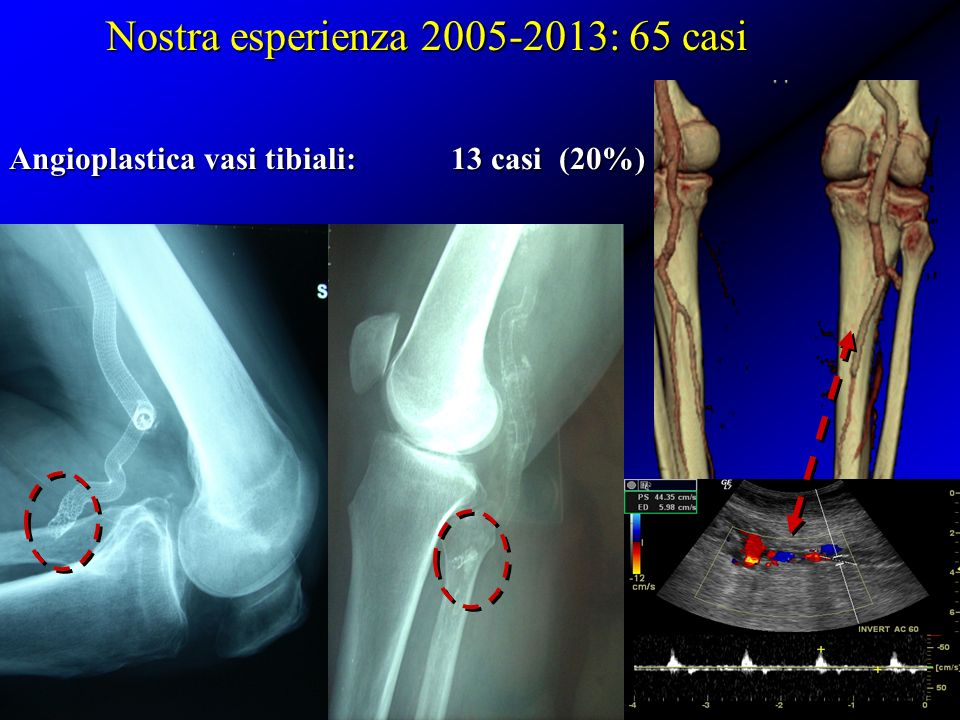 Angioplastica vasi tibiali: 13 casi (20%)
