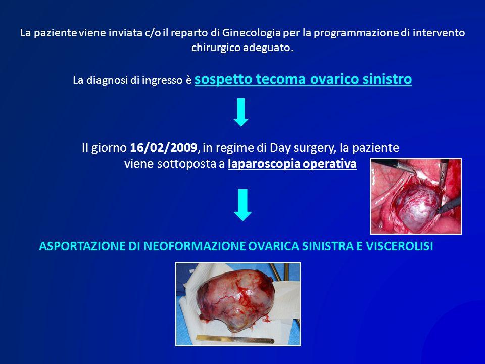 La diagnosi di ingresso è sospetto tecoma ovarico sinistro