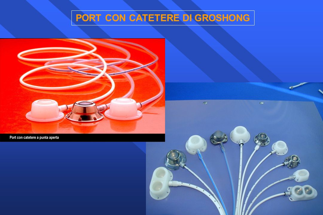 PORT CON CATETERE DI GROSHONG