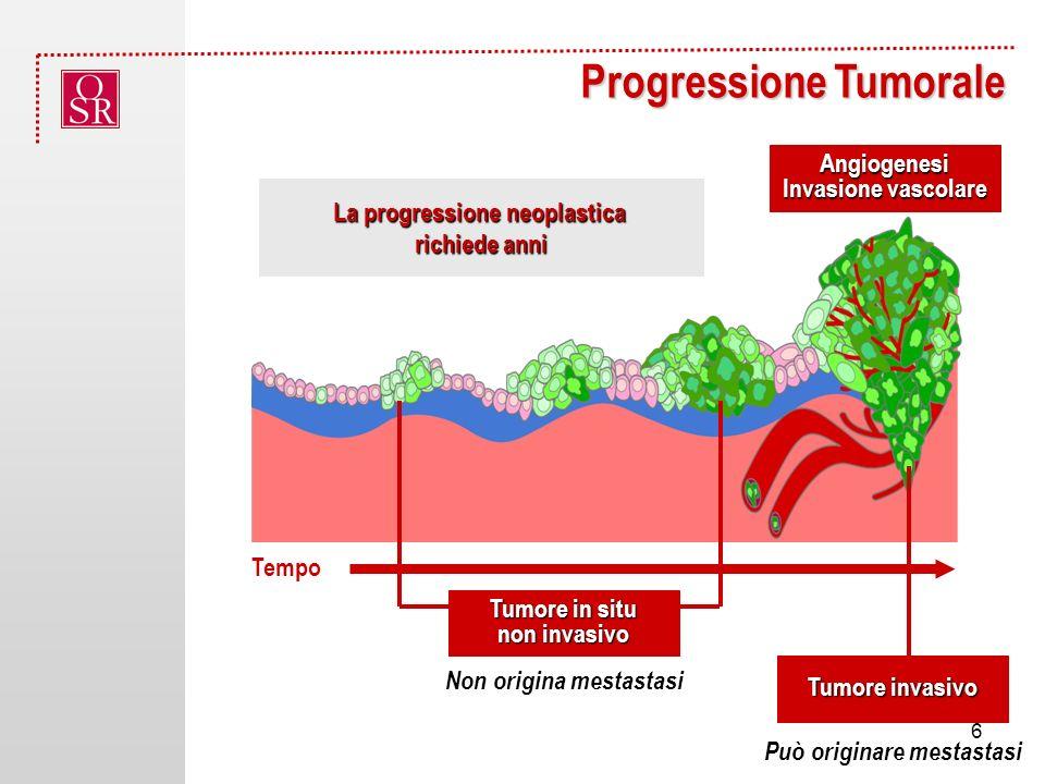 La progressione neoplastica