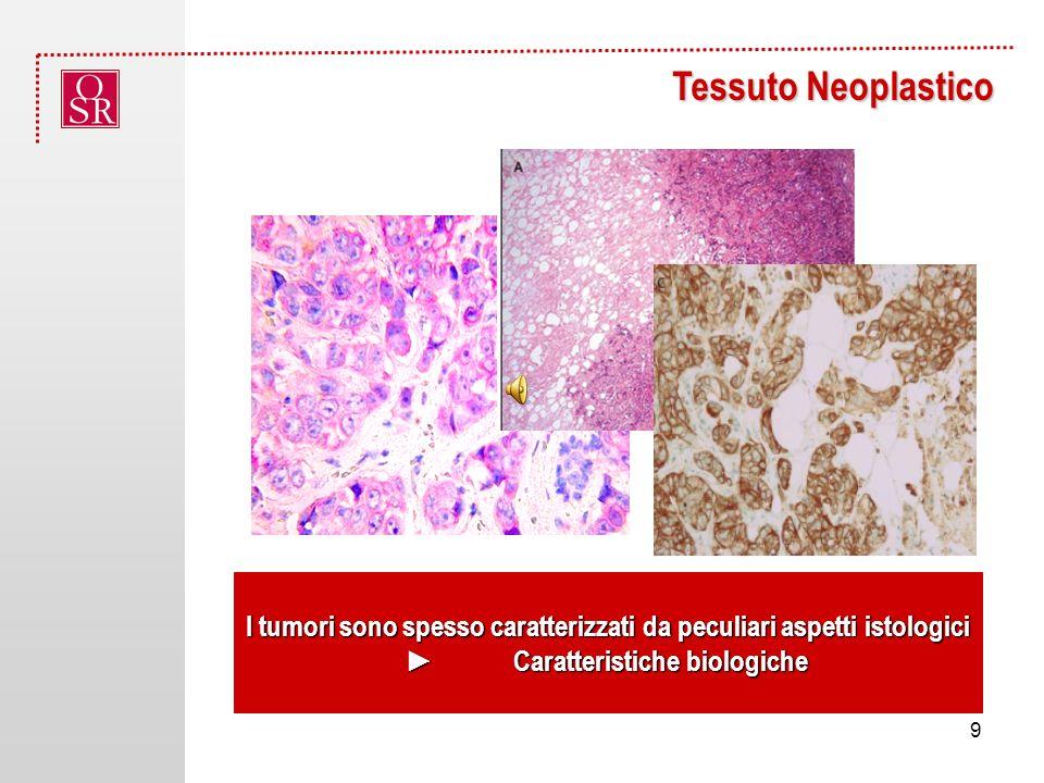 Tessuto Neoplastico I tumori sono spesso caratterizzati da peculiari aspetti istologici.