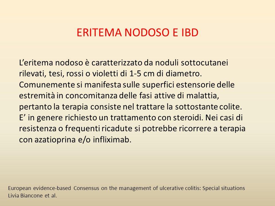 ERITEMA NODOSO E IBD