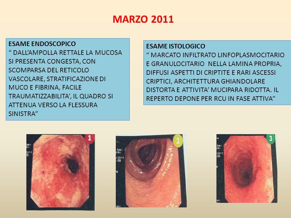 MARZO 2011 ESAME ENDOSCOPICO ESAME ISTOLOGICO