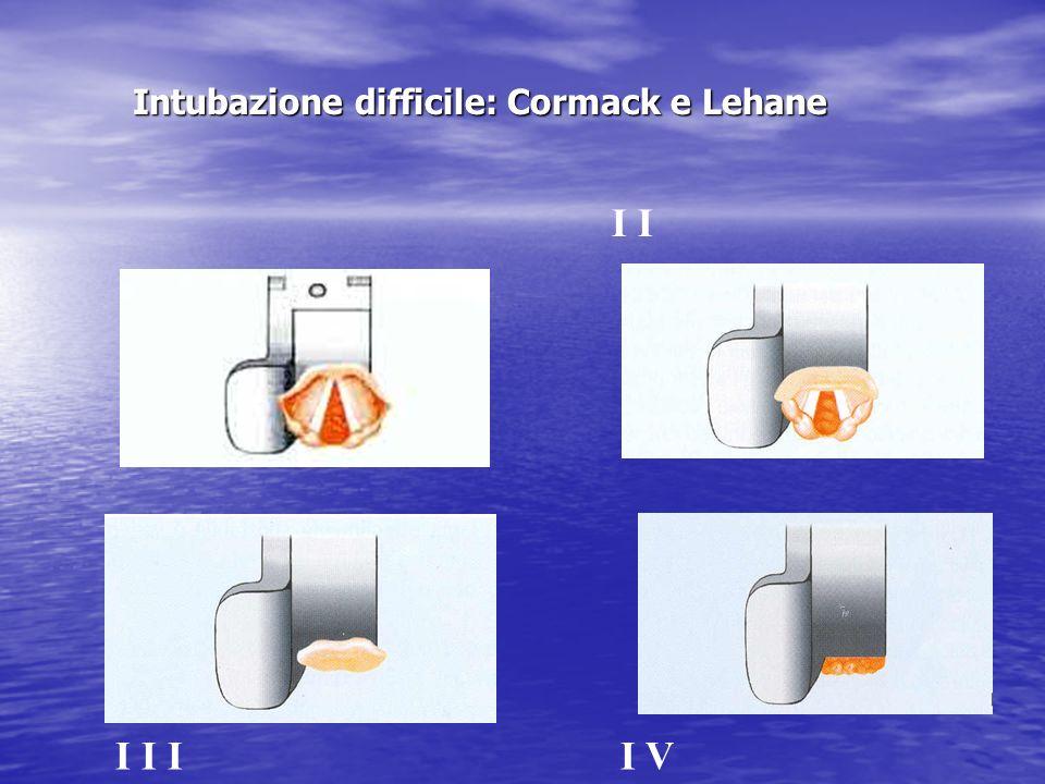 Intubazione difficile: Cormack e Lehane