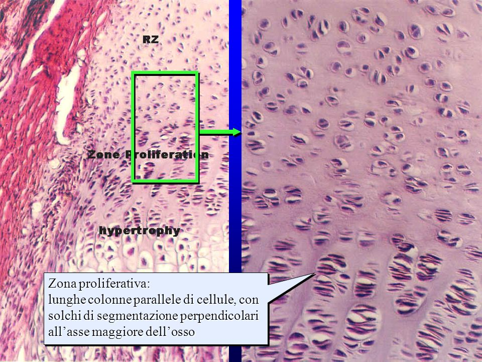 strati della cartilagine di accrescimento (1)