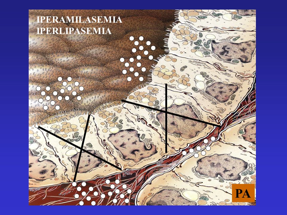 IPERAMILASEMIA IPERLIPASEMIA PA