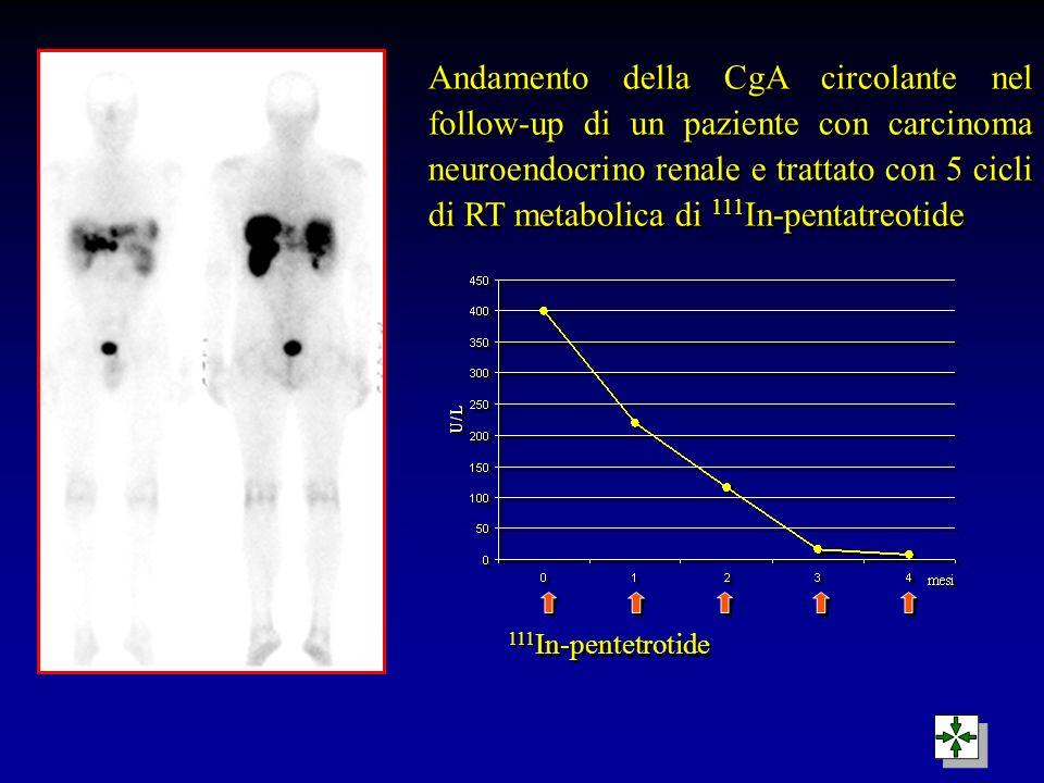 Andamento della CgA circolante nel follow-up di un paziente con carcinoma neuroendocrino renale e trattato con 5 cicli di RT metabolica di 111In-pentatreotide