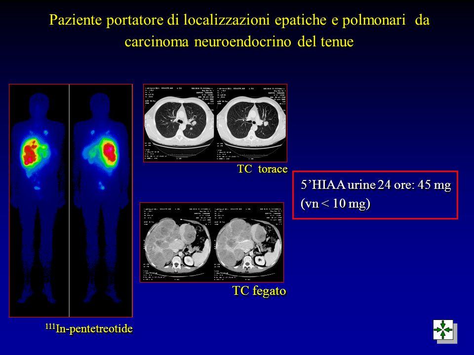 Paziente portatore di localizzazioni epatiche e polmonari da carcinoma neuroendocrino del tenue
