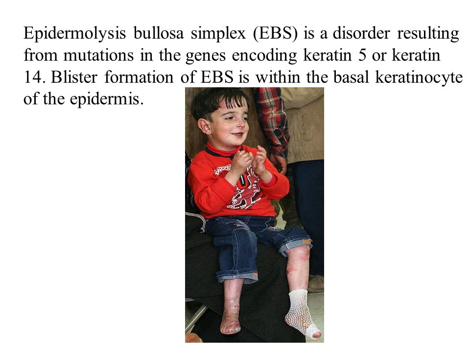 Epidermolysis bullosa simplex (EBS) is a disorder resulting from mutations in the genes encoding keratin 5 or keratin 14.