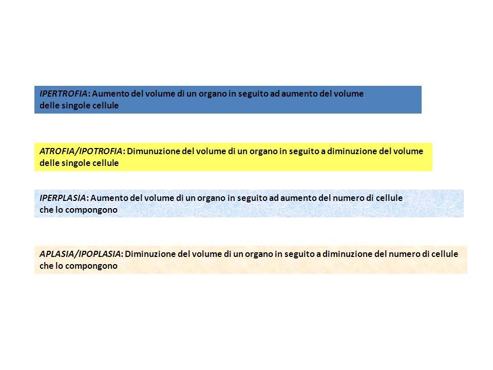 IPERTROFIA: Aumento del volume di un organo in seguito ad aumento del volume