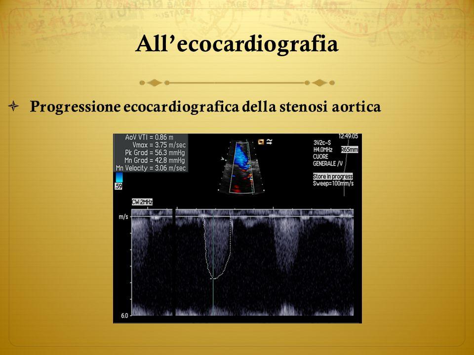All'ecocardiografia Progressione ecocardiografica della stenosi aortica